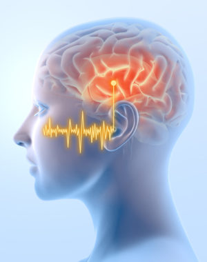Tinnitus and the brain